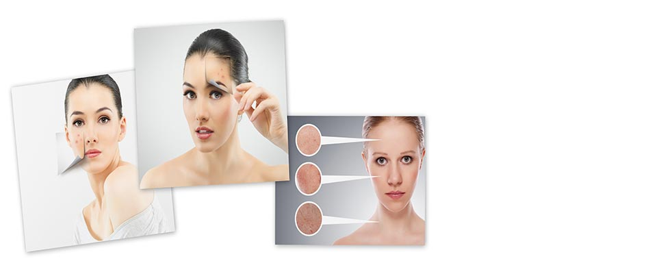 acne-treatment-main